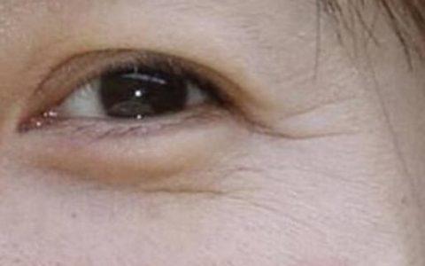眼角细纹如何去掉